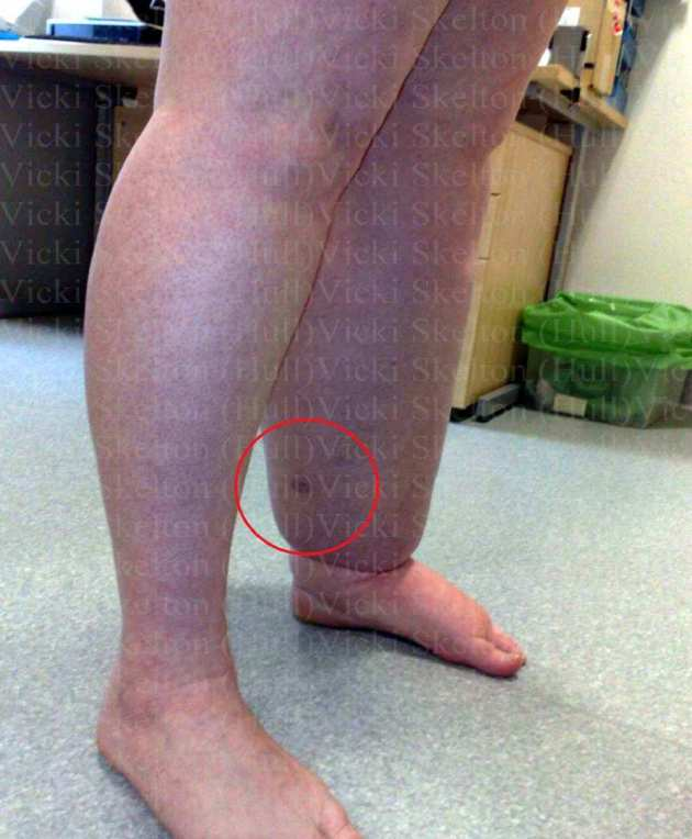 002a - 06.02.12 - Vicki's Leg d