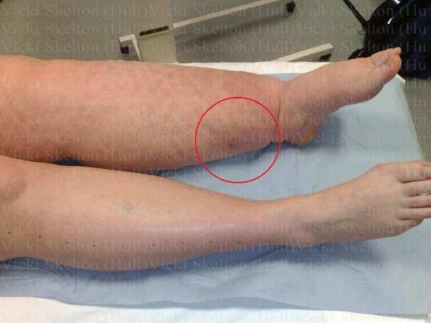 002b- 17.02.12 - Vicki's Leg b